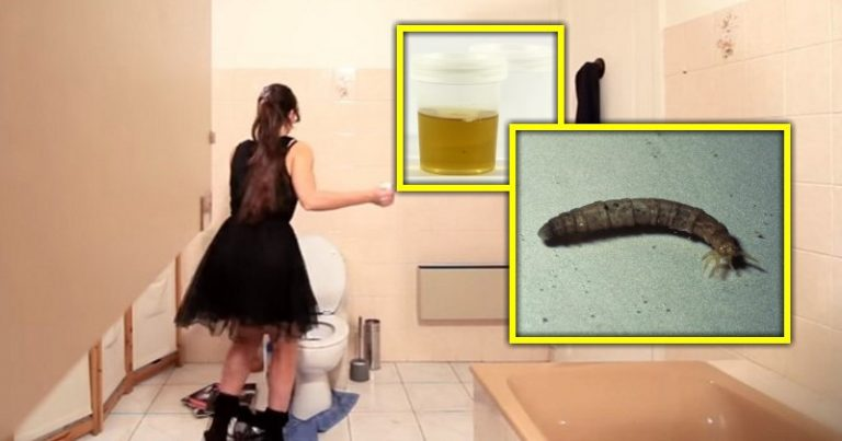 Immigrant Woman Urinates Worms For 3 Months, Health