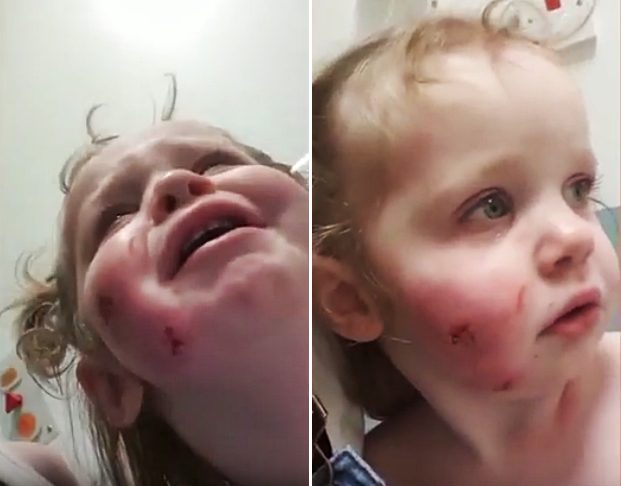 Little Bees Play Center: Toddler Left With Injuries After Bitten 15 Times