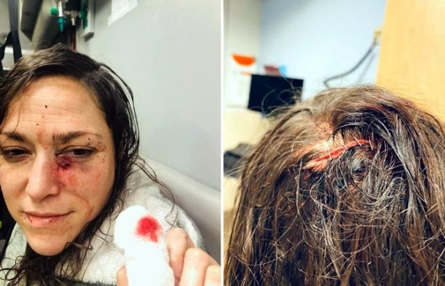 Alicia Clarke Woman Says Teen Beat Stabbed Her With Metal Rod Prosecutor Drops All Charges