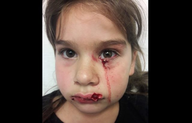 Gabriella Gonzales was attacked by a pit bull