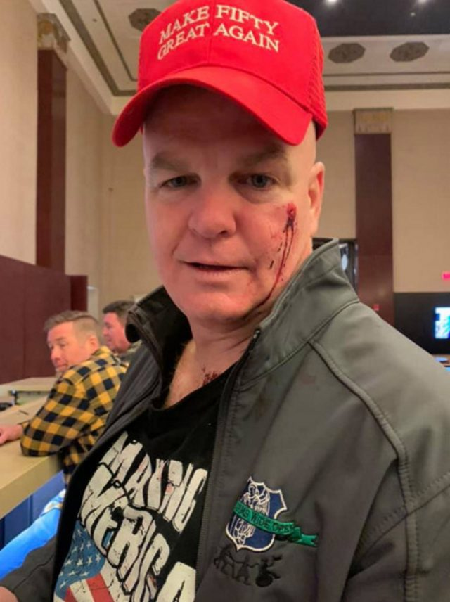 Daniel Sprague Retired NYPD Officer Says Woman Punched Him In Face Left It Bloody On His Birthday Over Red Cap That Looked Like MAGA Hat